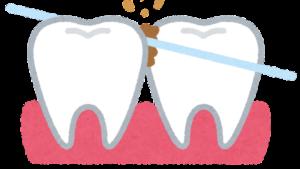 デンタルフロスで歯間清掃